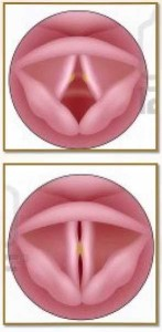 nodulos